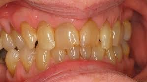 Картинки по запросу Желтые зубы от старости