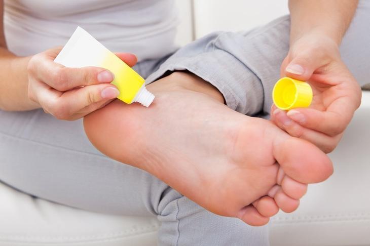 Местное лечение отеков ног