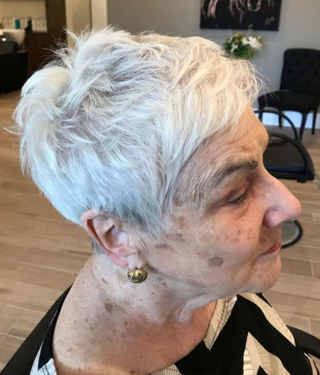 Over Choppy Pixie For Thinning Hair