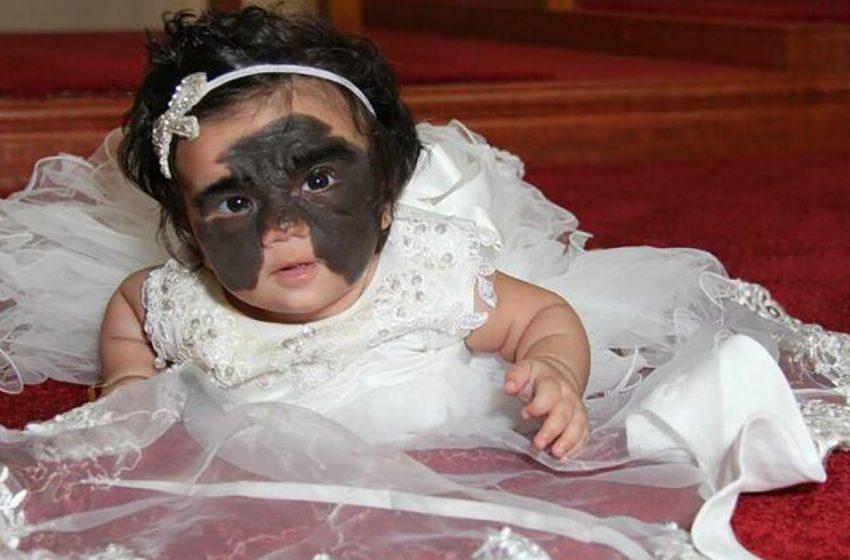 «Врожденная маска»: мама показала, как дела у малышки Луны с врожденным пятном на лице